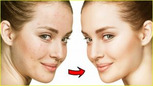 maxresdefault 70 300x169 - Acne Free Tips To Keep Your Skin Beautiful